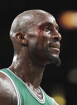 Garnett after the battle.